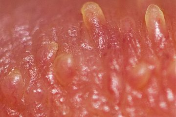 pearly penile papules wiki